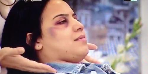 maquillage destinée aux femmes battues...